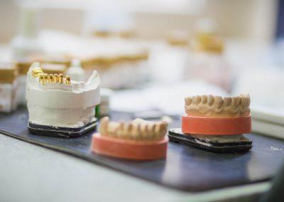 Labor mit Abdrücken in der Zahnarzt Praxis Frie in der Neuenkirchener Str. 2 in Gütersloh